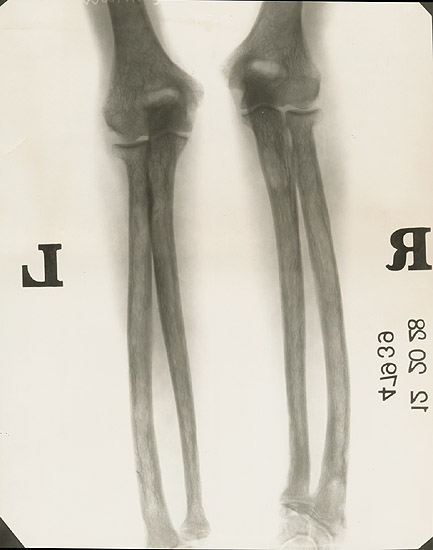 Anonymous - X-Ray of the Elbow (Humerus, Radius and Ulna)